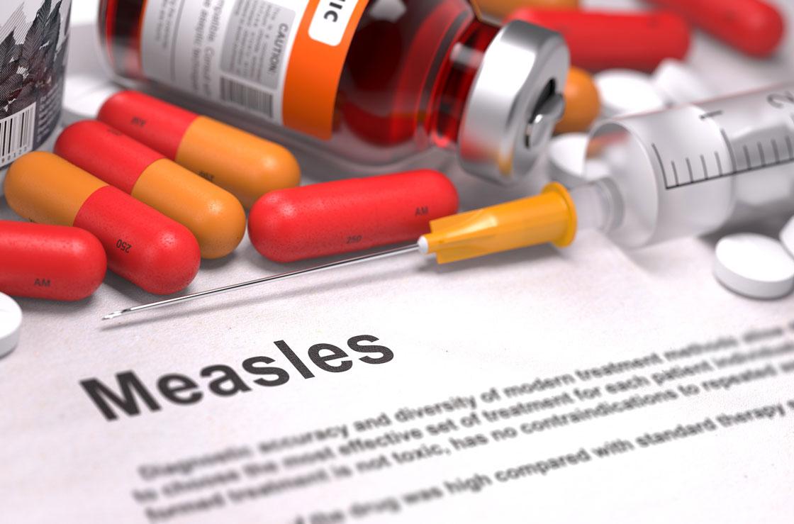 Measles Case Confirmed At Rock Springs Junior High School